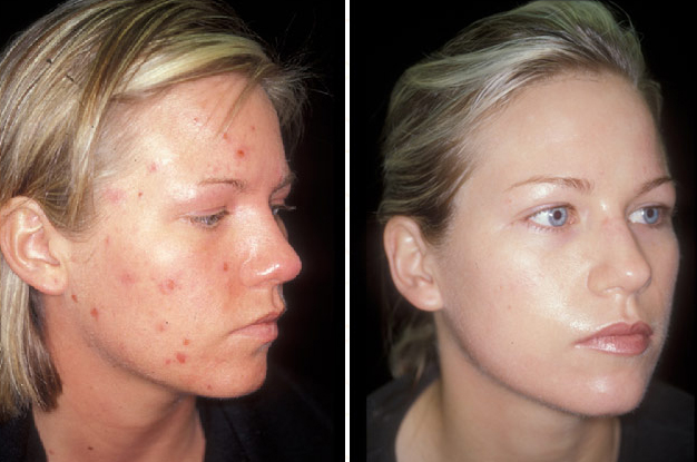 doxycycline for acne before and after