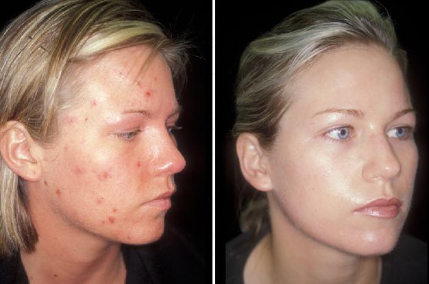 Rexburg Fall Creek Skin And Health Rexburg Dermatology